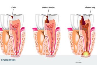 Endodontia - Tratamento Canal Metrô São Judas