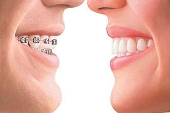 Ortodontia Aparelhos Dentários Metrô São Judas