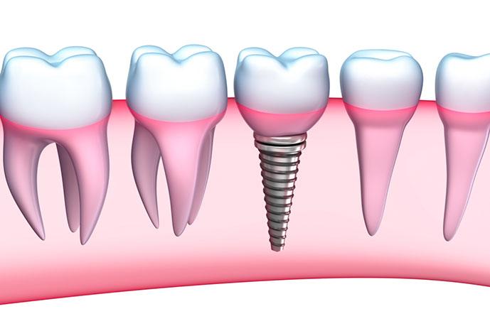 implante-dentario-dentista-implante-metro-sao-judas