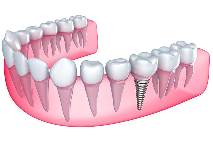 implante-dentario-dentista-implante-metro-sao-judas02