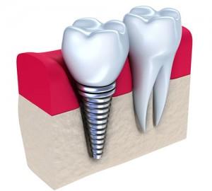 implante dentario metro sao judas