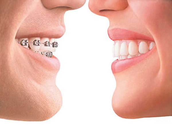 aparelhos odontologicos