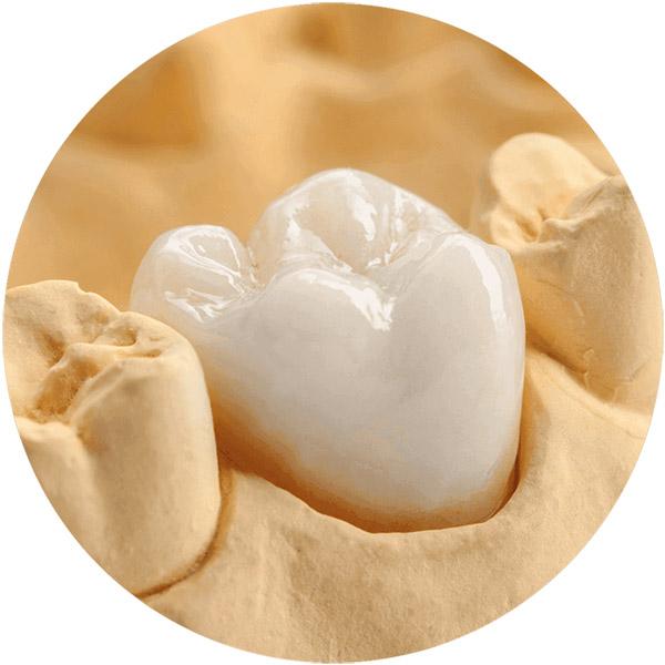 protese dentaria parcial